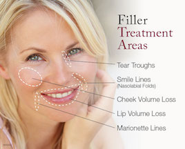 Filler-Treatment-Areas